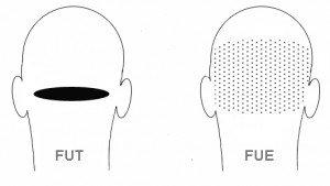 FUE ve FUT yöntemleri arasındaki fark